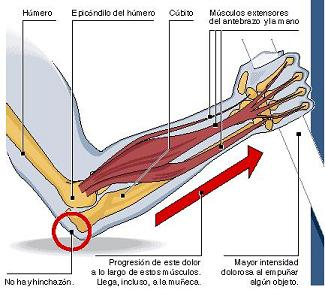 Codo de Tenista (Epicondilitis Lateral y Medial) - Salud y..