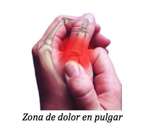 Artritis de la base del pulgar - Thumb